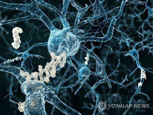 알츠하이머병, 두 유전자의 염증 제어에 달렸다