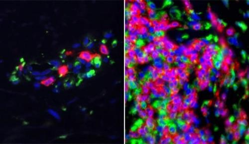면역계 유전자가 활성화한 루푸스 환자의 피부 조직 샘플(우)